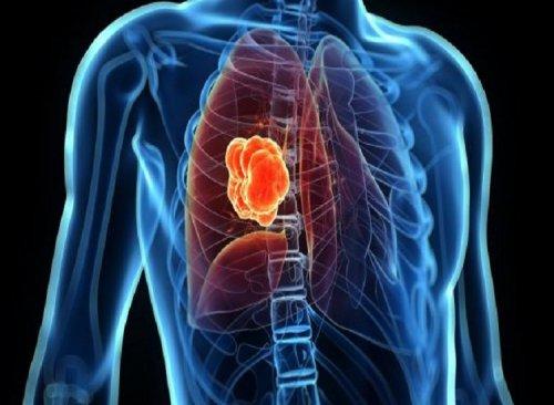 دانشمندان سرطان ریه را در افراد غیرسیگاری شناسایی کردند