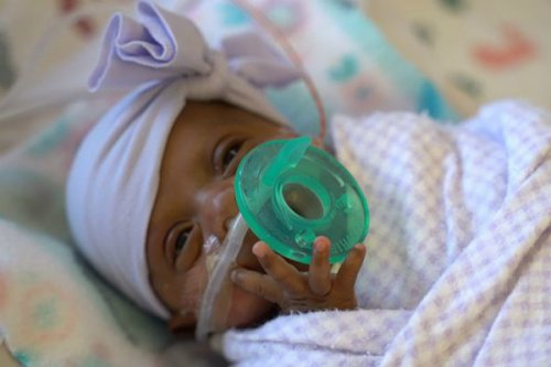 کوچکترین نوزاد دنیا پس از 5 ماه مراقبت روانه خانه شد